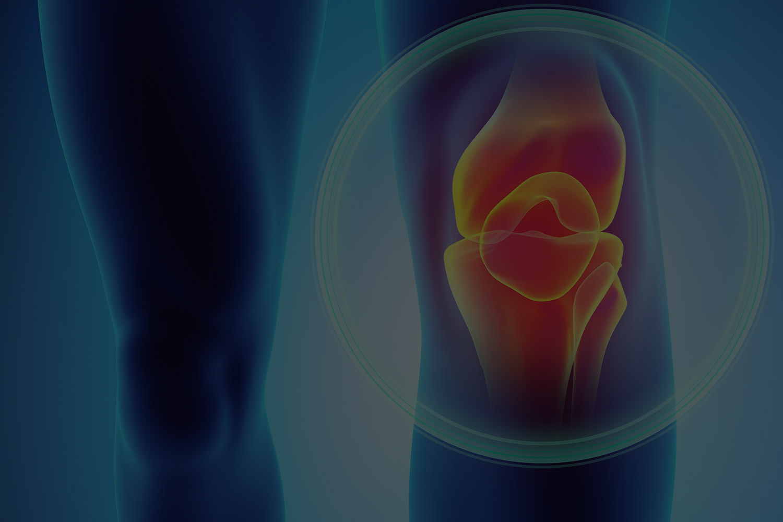 Was Sie über Orthopädie wissen sollten