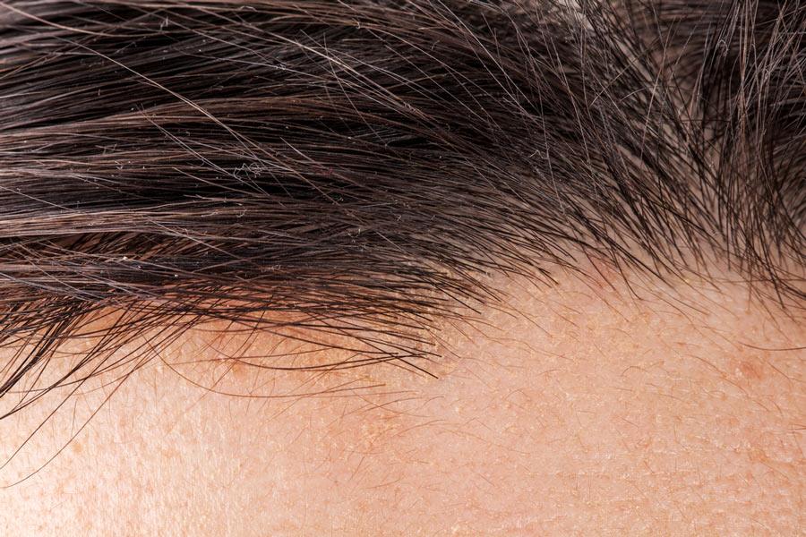 saç ekimi maliyeti